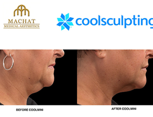 how to get rid of chin fat reddit
